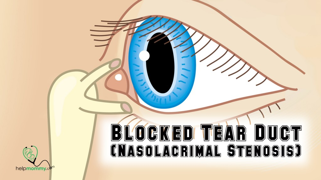 Blocked Tear Duct (Nasolacrimal Stenosis)