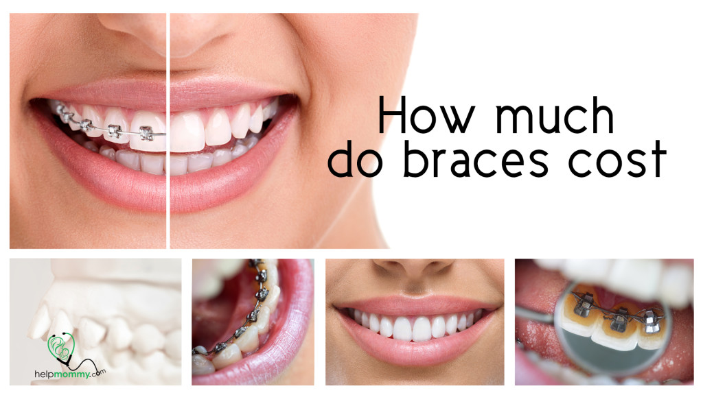 Braces_The Price of